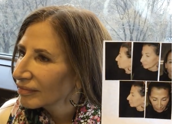 Patient Story:: 62 year old female patient  Thread lift & Fat transfer contouring