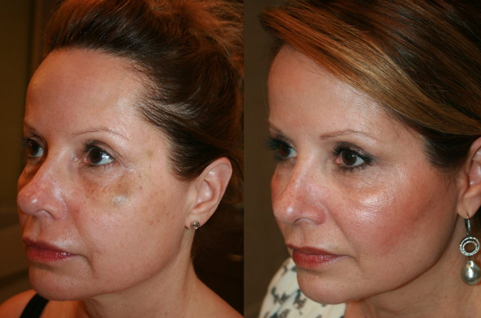 Patient Story:: 50 year old female patient Ultherapy/ Thread