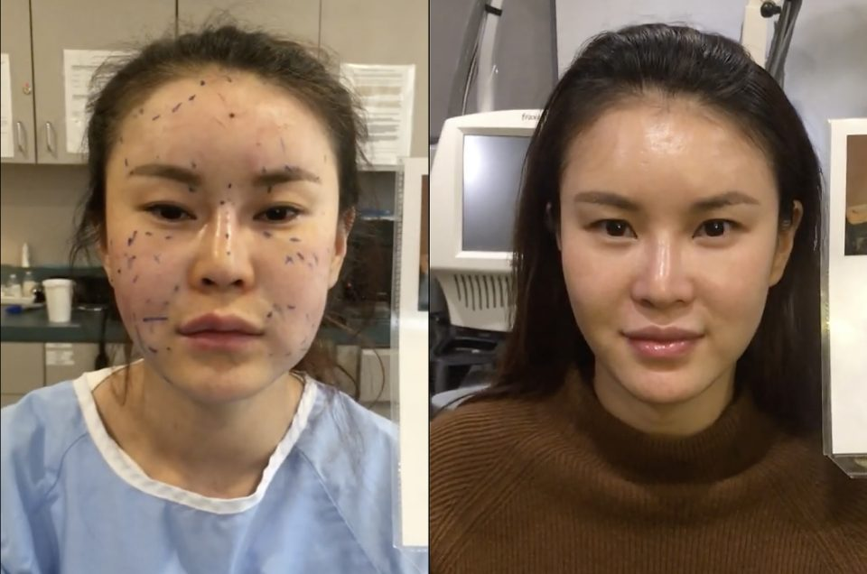 Patient Story:: 31 year old female patient  3-D contour of face following fat transfer