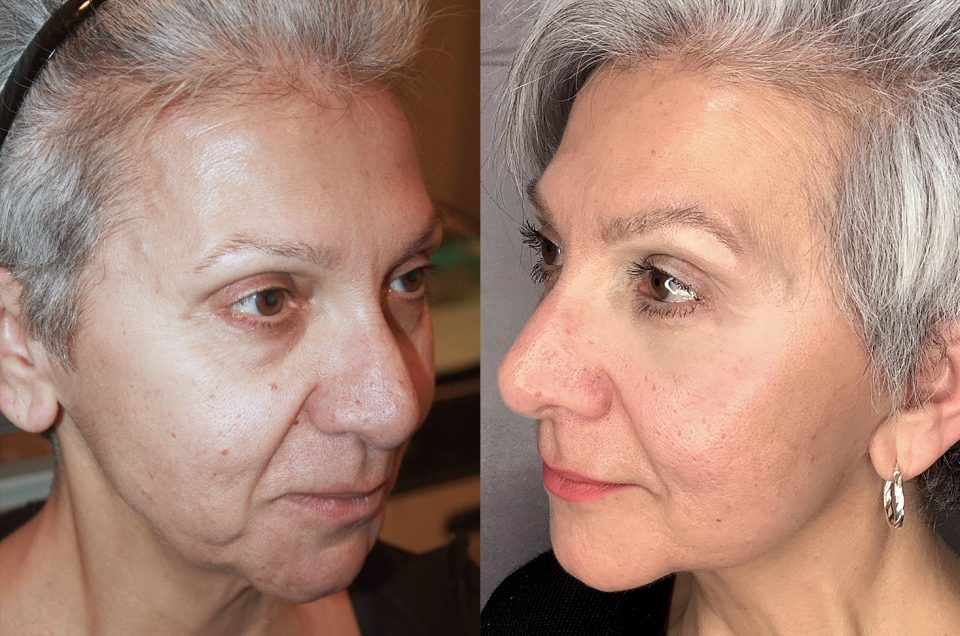 Patient Review: 62 yrs old Facelift and Lower blepharoplasty